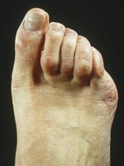 common foot problems everyday