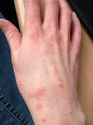 Herpes Or Rash Or Something? 2