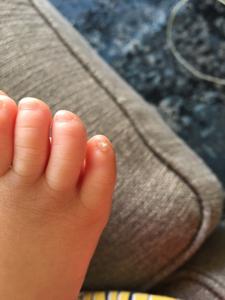 Split Pinky Toenail : split, pinky, toenail, Weird, Pinky, Toes?, March, Babies, Forums, Expect