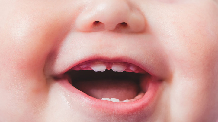 preventing cavities keeping baby