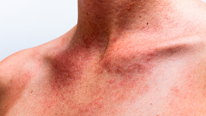 Heat Rash During Pregnancy  What to Expect