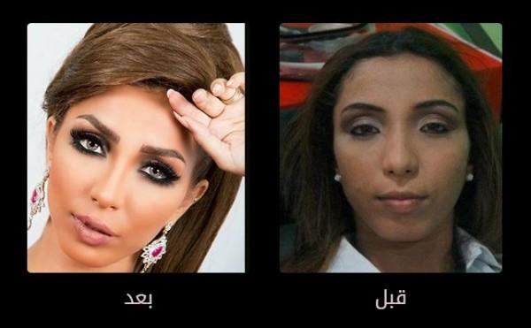 صور صادمة فنانات عرب قبل وبعد عمليات التجميل دنيا الوطن