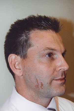 Police photograph of marks on Gerard Baden-Clay's face.