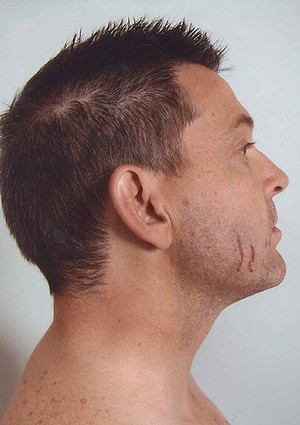 Photograph from the police examination of Gerard Baden-Clay.