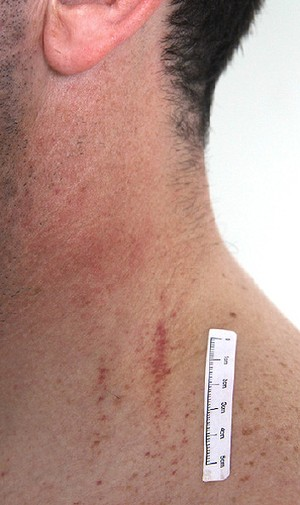 Marks on Gerard Baden-Clay's neck.