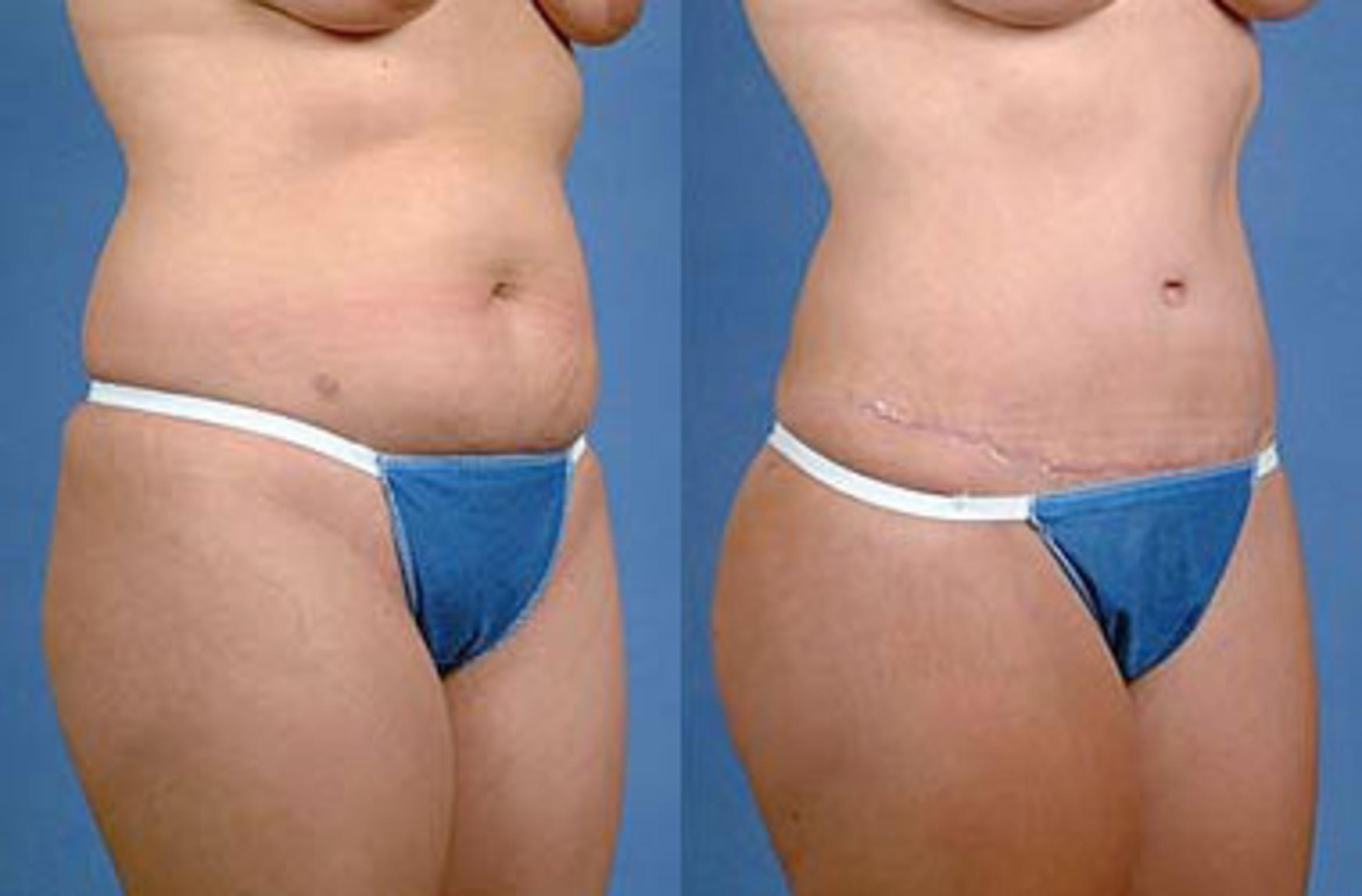 Tummy Tuck Before & After Photos Patient 143 | Louisville ...