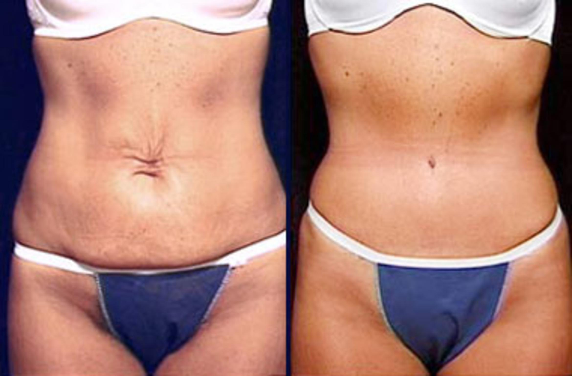 Tummy Tuck Before & After Photos Patient 146 | Louisville ...