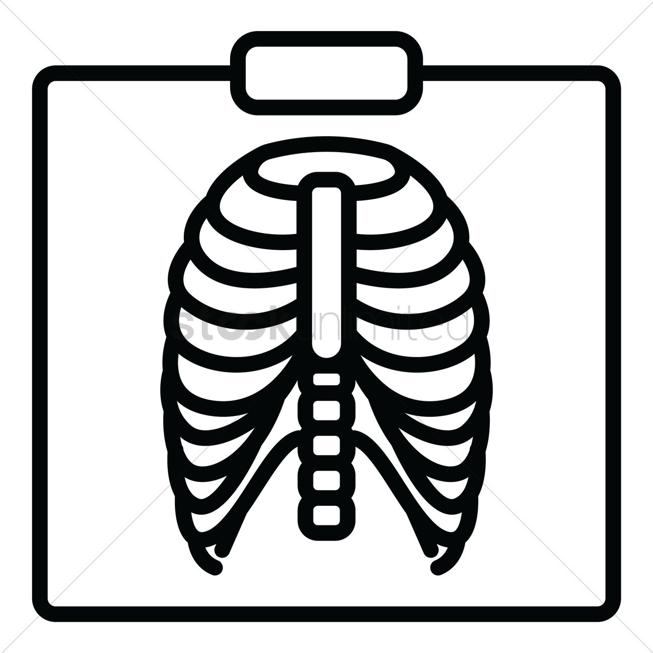 Chest X Ray Vector Image