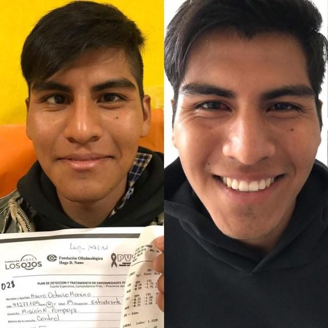Mauro Moreno, uno de los pacientes que operaron de estrabismo.