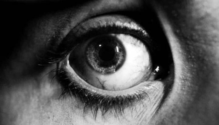 Ejemplo de ojo Sanpaku, en que bajo el iris se ve la parte blanca.