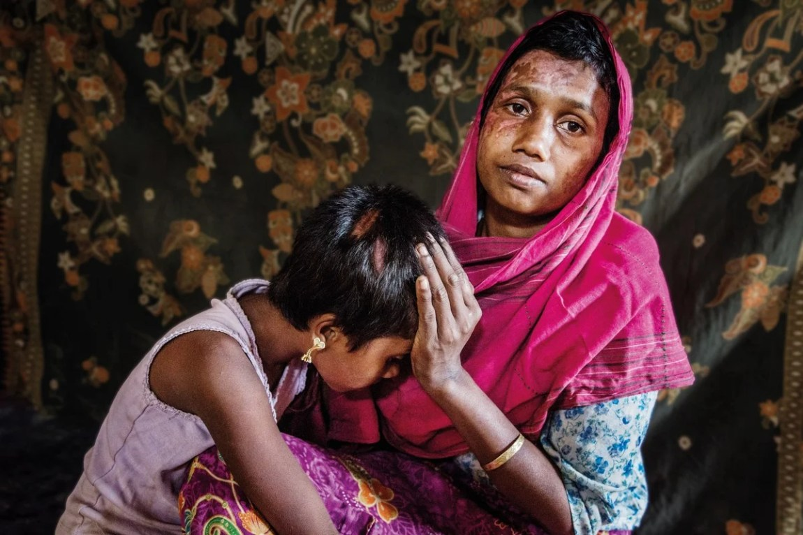 Mother and daughter, refugee victims of gender violence.  Photo: UNHCR