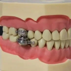"""The new method to lose weight: close the teeth with a """"padlock"""""""