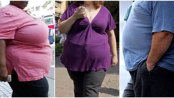 Imparable. Se estima que en 2025, una quinta parte de los adultos tendrá obesidad severa.