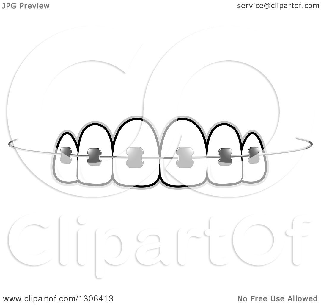 Clipart Of Teeth And Dental Braces