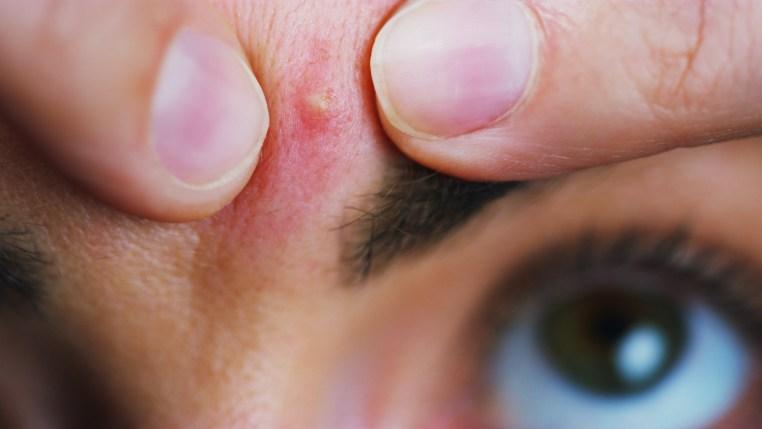 Los forúnculos:17 remedios naturales