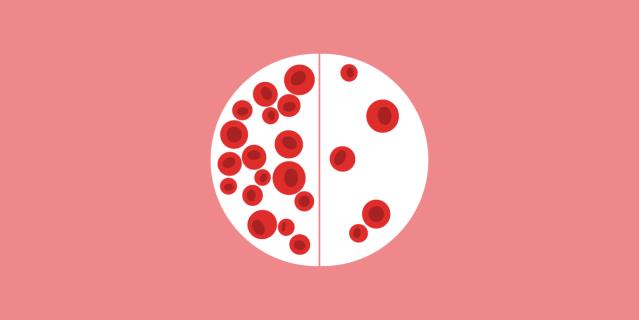 Resultado de imagen para anemia
