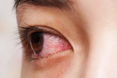 Types of conjunctivitis: Bacterial, viral, allergic | All About Vision