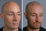 receding hairlines alopecia