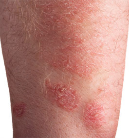 Psoriasis: Treatment Options to Manage Your Symptoms and Skin
