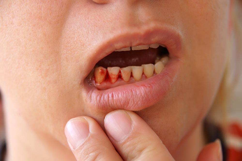 Why Do My Gums Bleed When I Brush My Teeth? | Dental Concerns