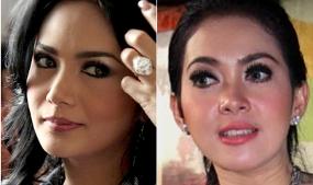 10 Fenomena Operasi Plastik Artis Indonesia