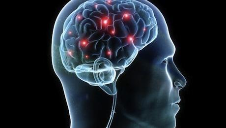 https://i0.wp.com/images.detik.com/content/2014/08/11/511/brain.jpg
