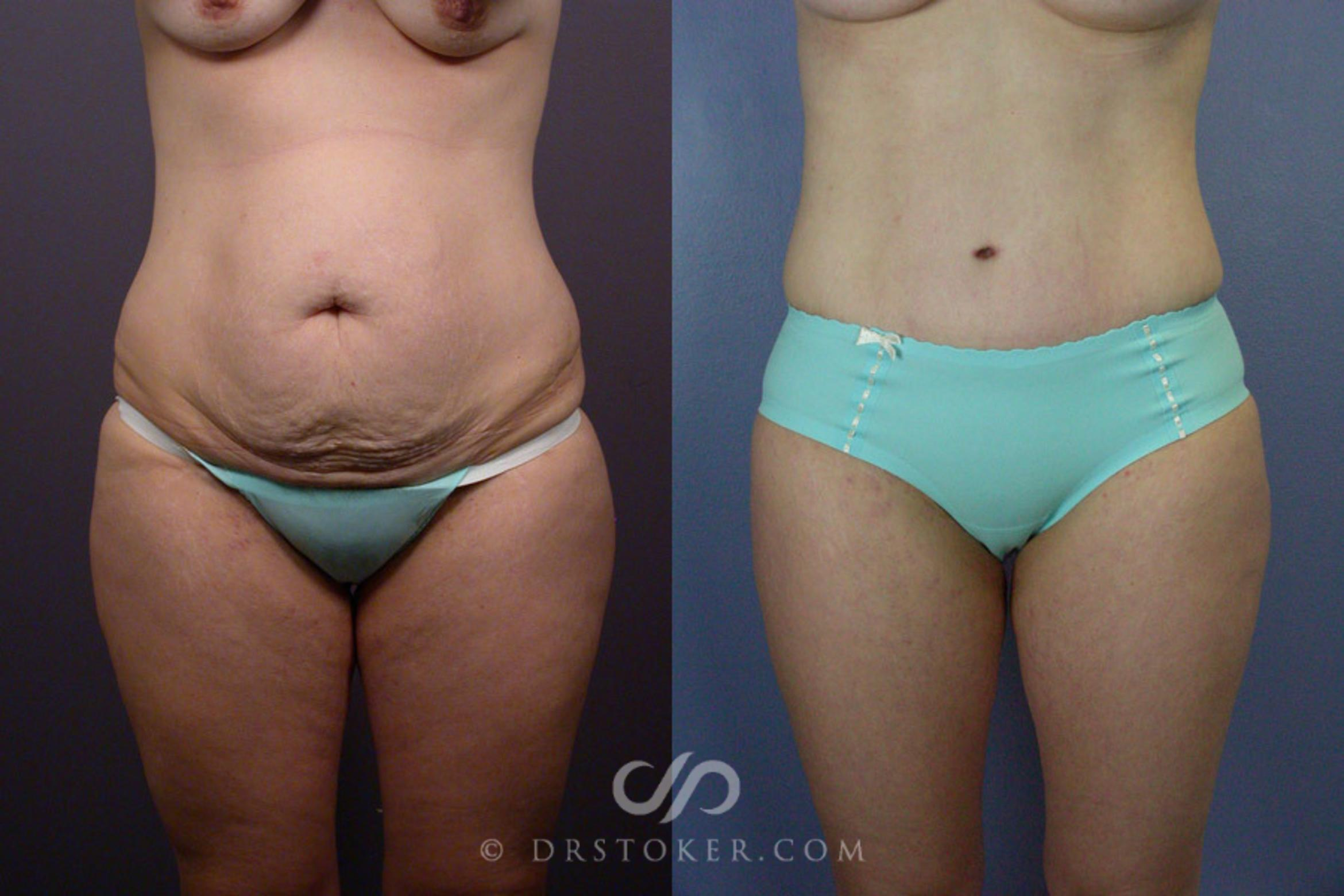Breast Augmentation Before & After Photos Patient 241 ...