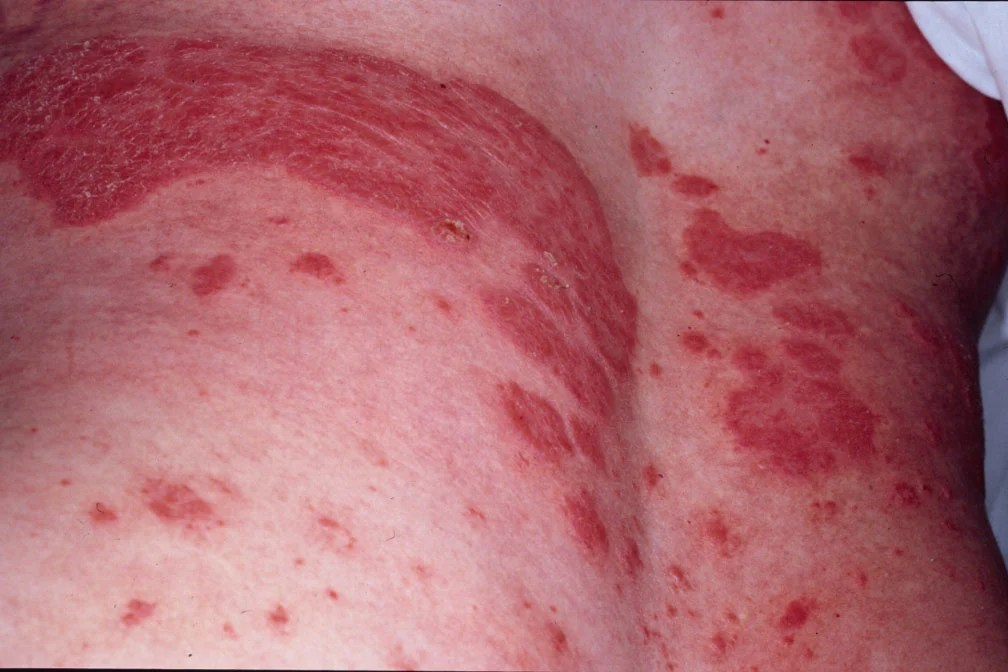 Psoriasis what is it