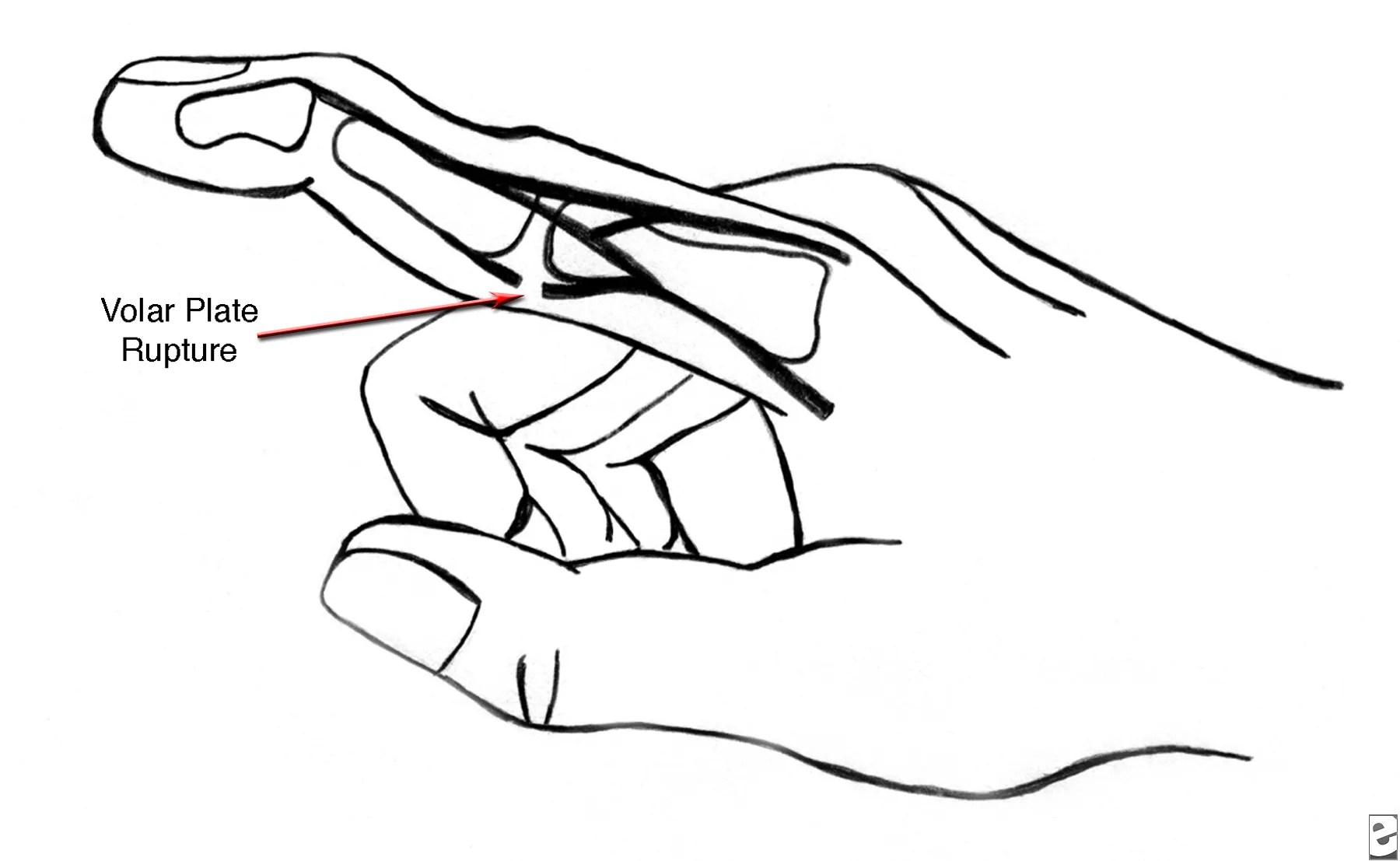 Finger Injury Symptoms Treatment Amp Diagnosis