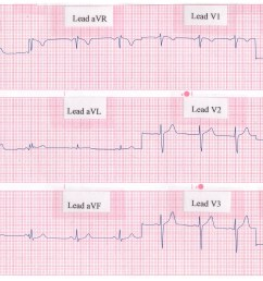 rhythm strip showing a normal 12 lead ecg  [ 2562 x 1500 Pixel ]