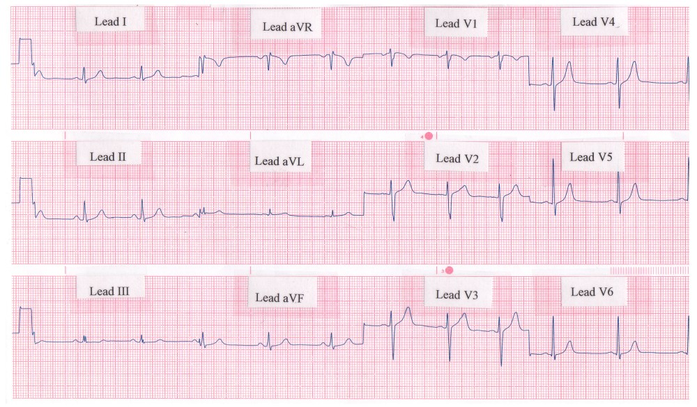 medium resolution of rhythm strip showing a normal 12 lead ecg