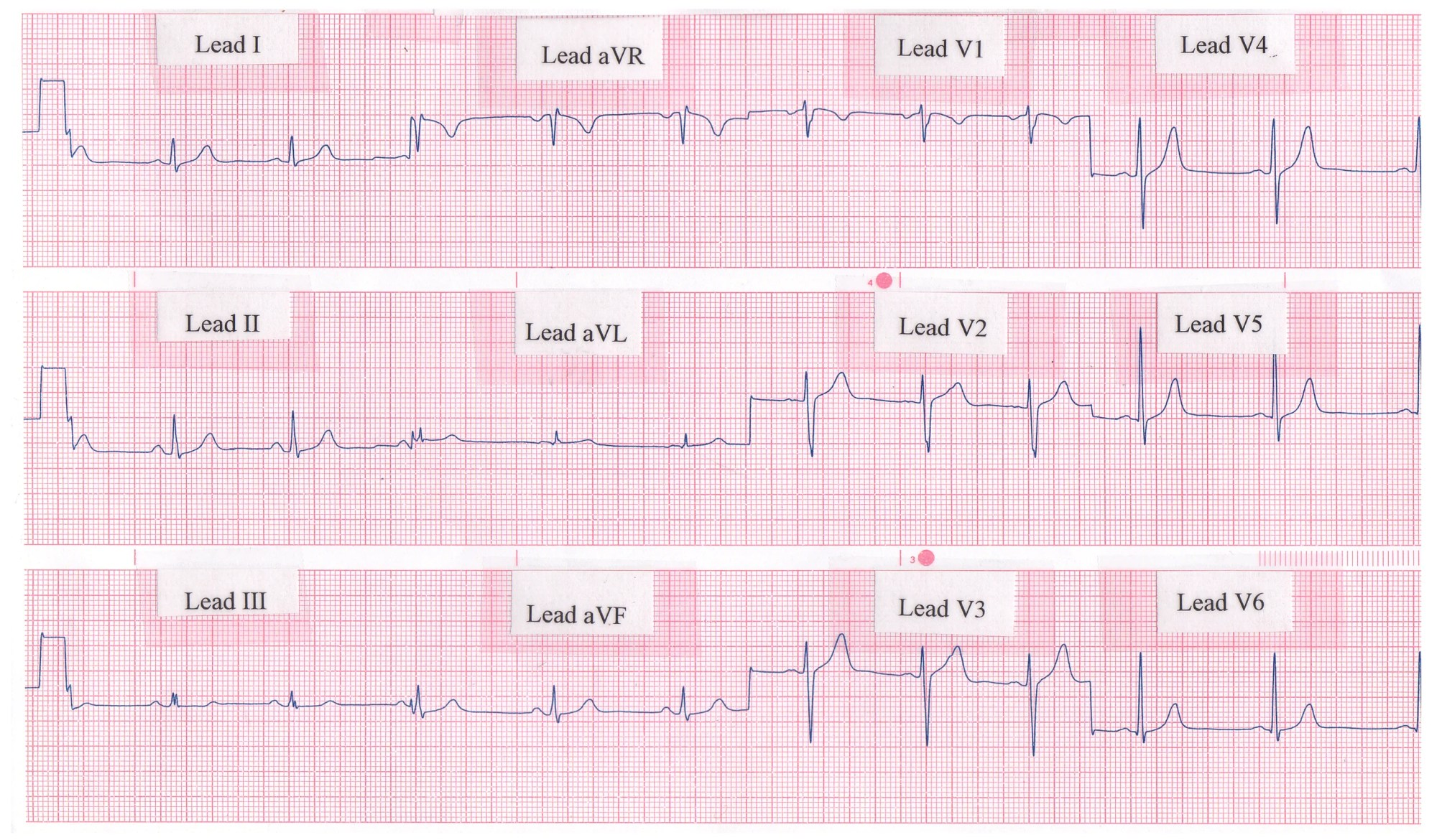 hight resolution of rhythm strip showing a normal 12 lead ecg