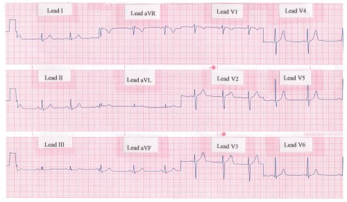 small resolution of rhythm strip showing a normal 12 lead ecg