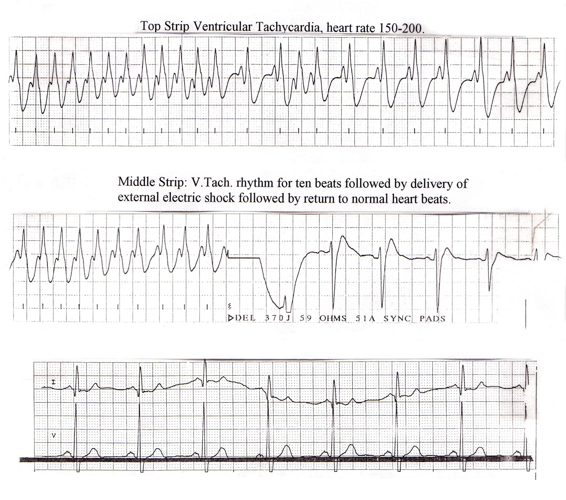 hight resolution of rhythm strip of a person who was cardioverted