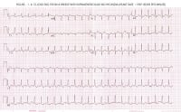 Supraventricular Tachycardia ECG, Causes, Symptoms & Treatment