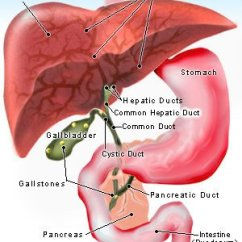 Gallbladder Location Diagram Boreal Forest Food Web Pain Symptoms Causes Cholecystitis Illustration Of Gallstones Forming In The
