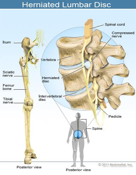 Lower Back Muscles Diagram Pain : lower, muscles, diagram, Symptoms,, Locations,, Treatments, Causes