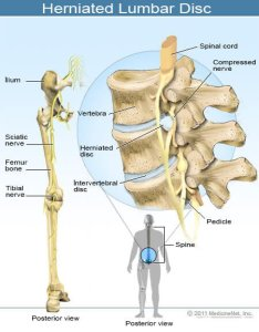 Picture of  herniated lumbar disc also low back pain symptoms locations home remedies  treatments rh emedicinehealth