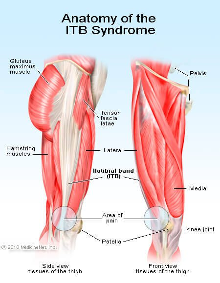 Its Vs Itb : Illitibial, Syndrome, Symptoms,, Treatment, Tests
