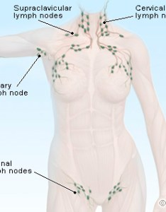 Lymph nodes illustration also picture of lymphatic system rh emedicinehealth