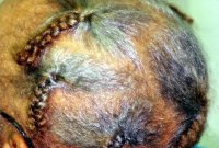 Pictures of Hair Loss Diseases and Problems - Traction ...