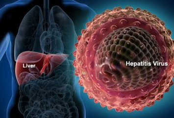 hepatitis infection