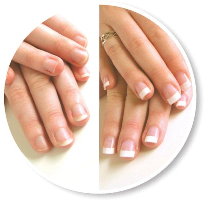 Gel Nail Extensions At Home