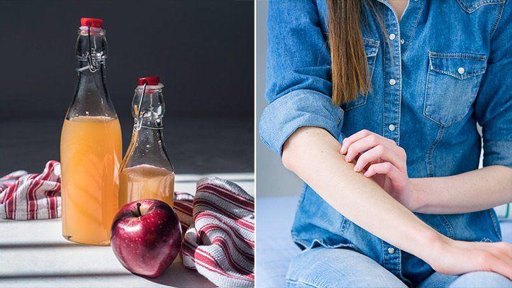 32 apple cider vinegar uses everyday