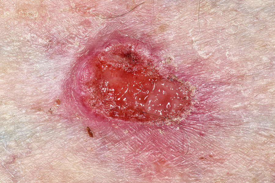 Basal-cell Carcinoma Skin Cancer Photograph by Dr P ...