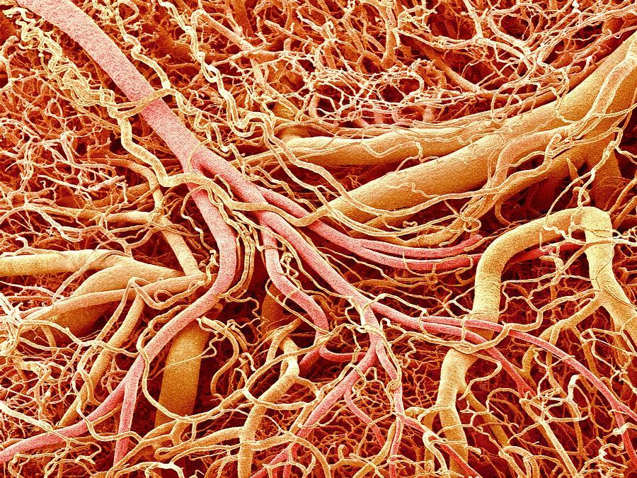 Blood Vessels Of A Lymph Node Photograph by Susumu Nishinaga