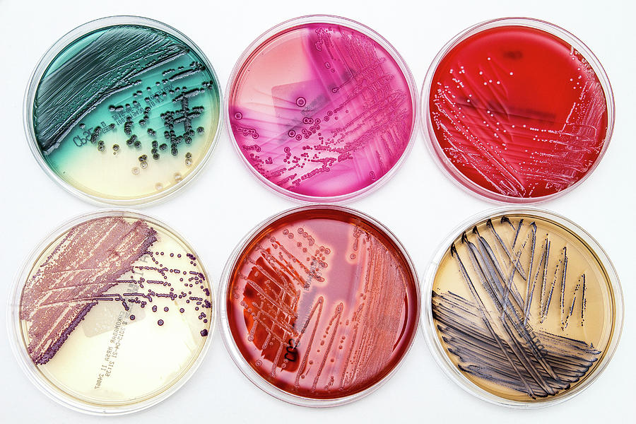 Bacterial Growth On Culture Media Photograph by Daniela ...