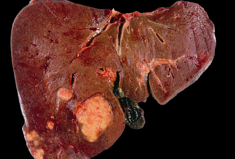 Secondary Liver Cancer Photograph by Medimage/science ...