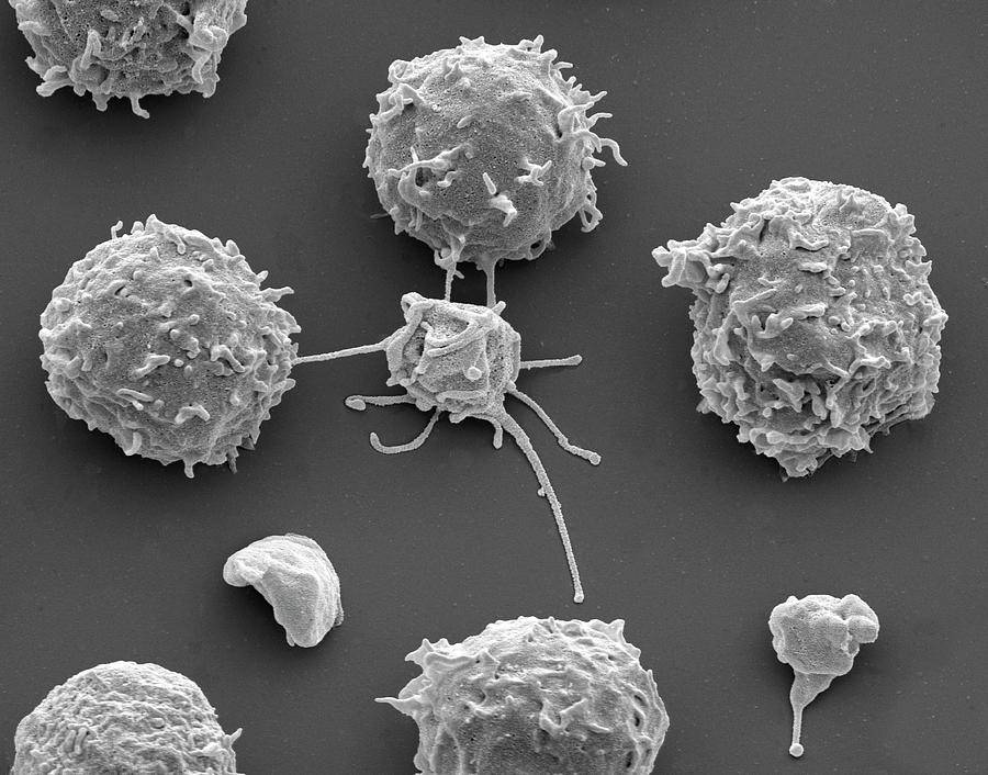 White Blood Cells And Platelets Photograph by Steve ...