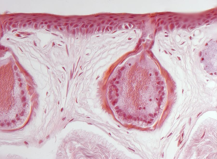 Frog Integumentary System Diagram Frog Skin Glands Light Micrograph Photograph By Robert Markus